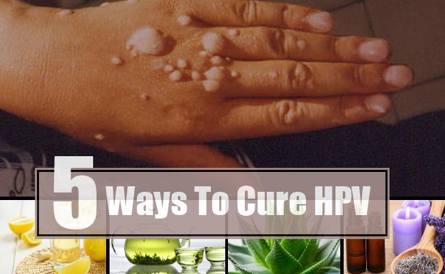 "<span style=""font-weight: bold;"">NATURAL HPV CURE </span>"